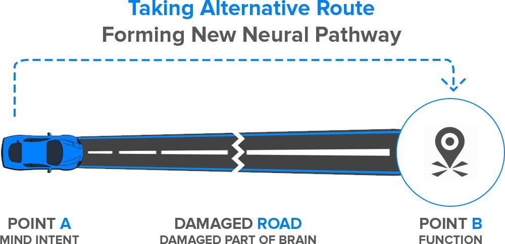 neuroplasticity-alternative-route